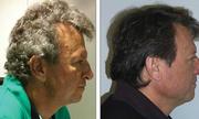 Thuốc chữa ung thư biến tóc bạc thành tóc đen