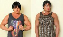Thay đổi cơ thể khi bạn lạm dụng thuốc tăng cơ steroid