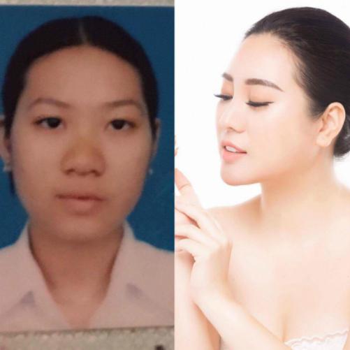 co-gai-sai-gon-chi-hon-nua-ty-dong-de-sua-lai-khuon-mat-buon