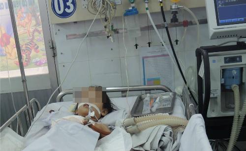 Trẻ thở máy điều trị viêm não Nhật Bản tại Bệnh viện Nhi đồng 1. Ảnh: Lê phương