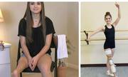 Cô bé ung thư xương một chân nhảy ballet gây xúc động