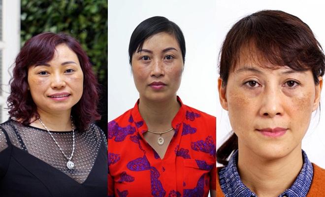 Chị Thủy, chị Lan và chị Linh đều là những trường hợp cháy da do trị nám sai cách