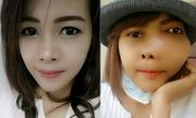 Cô gái xinh đẹp biến dạng mặt trước khi qua đời do ung thư