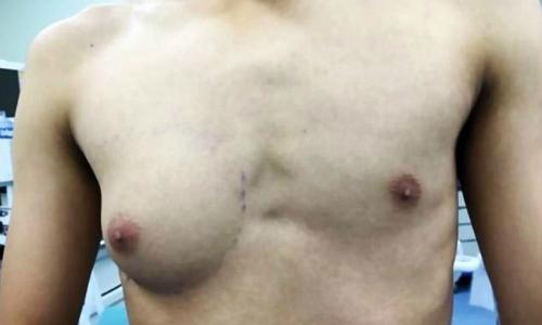 Chàng trai sở hữu nửa bộ ngực phụ nữ do nghiện đồ ăn nhanh