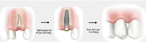 thoi-diem-thich-hop-cay-ghep-implant-1