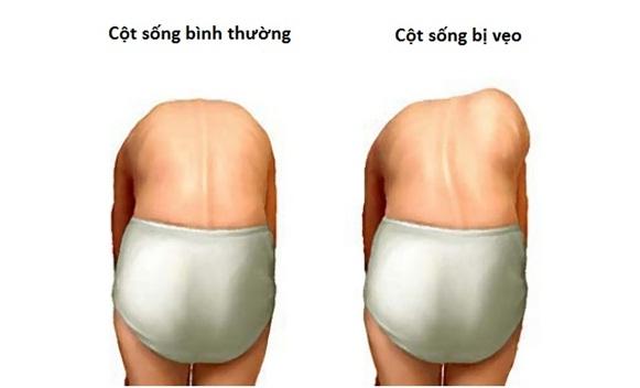 ba-luu-y-de-phat-hien-va-tri-cong-veo-cot-song-kip-thoi-2