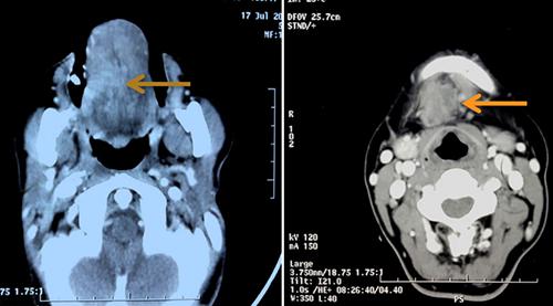 Kết quả CT SCan của bệnh nhân khi mới phát hiện.