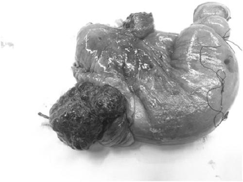 Khốikhối u và đoạn ruột sau sau khi được cắt bỏ