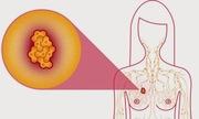 Bốn hiểu lầm phổ biến về ung thư vú ở phụ nữ