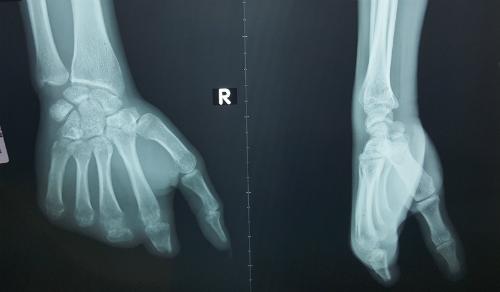 Bàn tay phải của bệnh nhân bị mất cả 4 ngón.