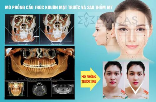 Quảng cáo phẫu thuật gọt hàm 3D tạo mặt V-line Hàn Quốc tại Bệnh viện Thẩm mỹ Emcas.