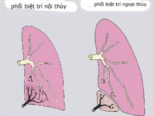 Hình minh họa tổn thương phổi biệt trí