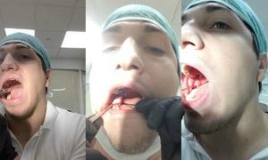 Nha sĩ Nga soi gương tự nhổ răng khôn