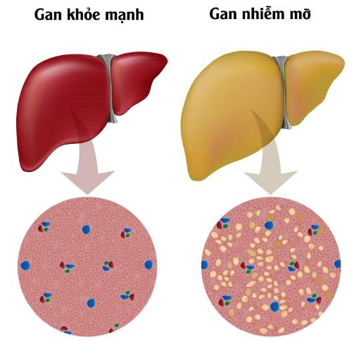 Đường huyết cao làm tăng nguy cơ gan nhiễm mỡ dẫn đến xơ gan.