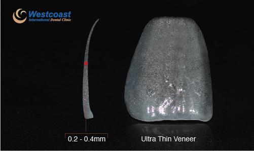 tai-tao-nu-cuoi-voi-mat-dan-su-ultra-thin-veneers-2