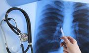 10 bác sĩ Sài Gòn tư vấn miễn phí về bệnh ung thư phổi