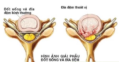 40-nam-nam-vong-khien-nguoi-phu-nu-bi-thoat-vi-dia-dem