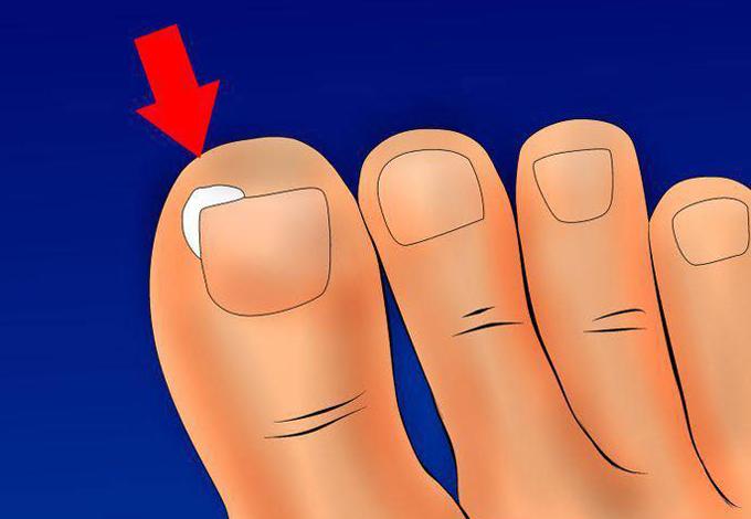 Xử trí khi móng chân mọc đâm chọc vào da