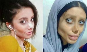 Khuôn mặt như phim kinh dị của thiếu nữ 50 lần phẫu thuật thẩm mỹ