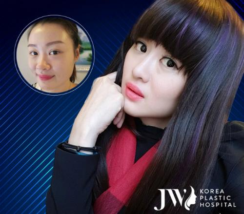Cô nàng Lean Yee Lin từ Singapore lột xác sau ca nâng mũi Sline Plus.