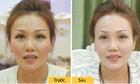 Phương pháp đẩy lùi lão hóa cho phái đẹp