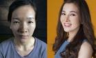 5 cô gái xấu xí hóa mỹ nhân nhờ 'dao kéo' năm 2017