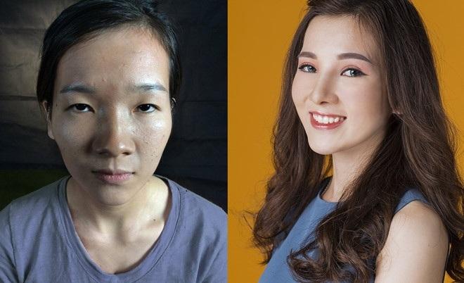 5 cô gái xấu xí hóa mỹ nhân nhờ 'dao kéo' năm 2017 Sức Khỏe