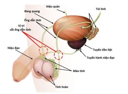 bac-si-triet-san-cho-dan-ong-nhu-the-nao