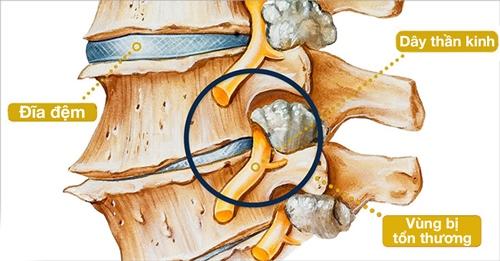 Cột sống bị thoái hóa xuất hiện chèn ép dây thần kinh.