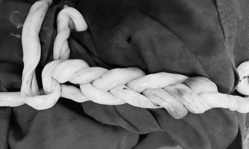 Cặp song sinh Hà Nội chào đời với dây rốn đan vào nhau như tết tóc