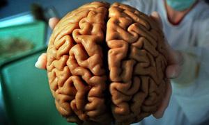 Người đầu to có thông minh hơn?