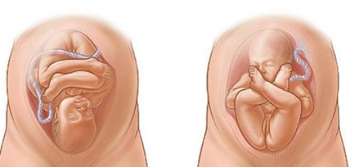 Tại sao thai nhi không quay đầu phải đẻ ngược