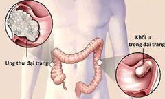 Bao lâu nên nội soi kiểm tra ung thư đại trực tràng?