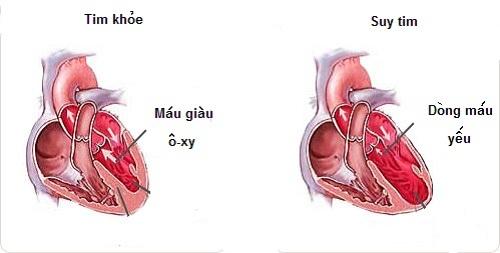 Bệnh suy tim bạn cần biết.