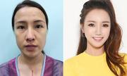 Cô gái Sài Gòn phẫu thuật gương mặt khiến bố mẹ không nhận ra con