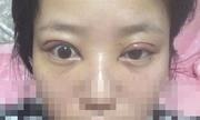 Ham cắt mí giảm giá 50%, cô gái lâm tình trạng mắt to mắt nhỏ