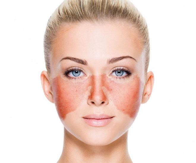 11 bất thường trên khuôn mặt cảnh báo bạn mắc bệnh