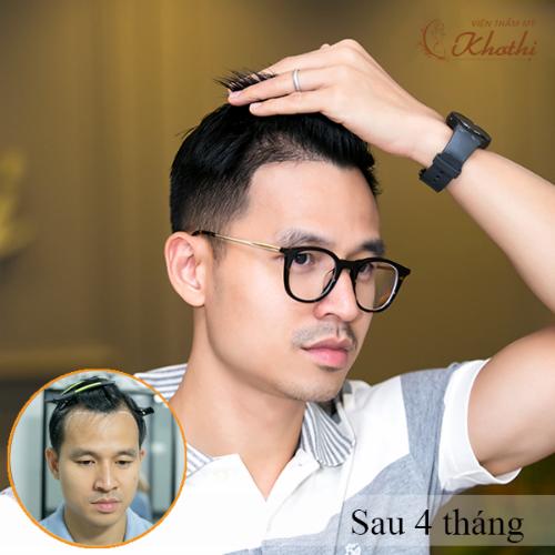 Doanh nhân Sơn Đoàn lấy lại phong độ sau khi cấy tóc Hair Balance tại Khơ Thị.