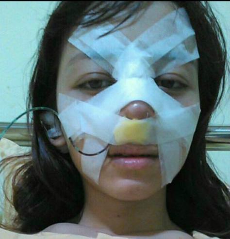 Duyên vô cùng đau đơn khi nâng mũi. Ảnh: X.D