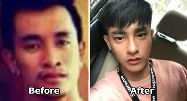 Ratchadapong trước và sau khi phẫu thuật thẩm mỹ. Ảnh: N.S.