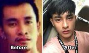 Chàng trai Thái sửa mặt gần 30 lần bởi tình duyên sự nghiệp lận đận