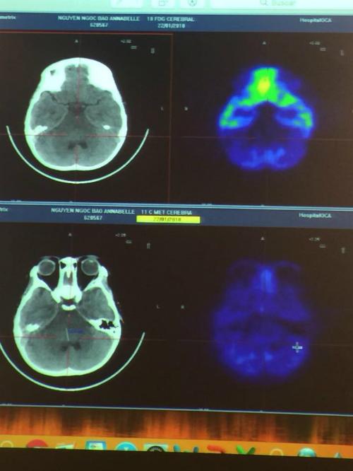 Ảnh chụp cho thấy khối u trong não Annabelle đã biến mất. Ảnh: Facebook.