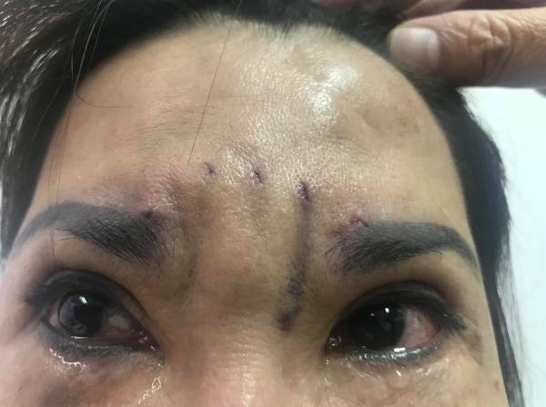 Bệnh nhân xuất hiện nhiều sẹo trên trán, đôi mắt sưng bầm sau khi treo chân mày bằng chỉ tại một spa.