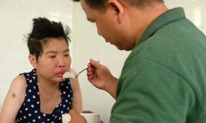 Tình cảnh khốn khổ của người phụ nữ mắc bệnh lupus ban đỏ