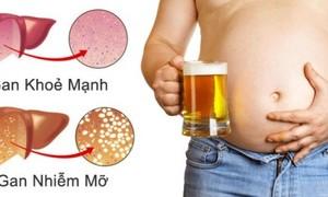 Tại sao không béo vẫn bị gan nhiễm mỡ?