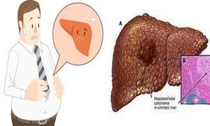 Gan nhiễm mỡ gây nhiều bệnh nguy hiểm