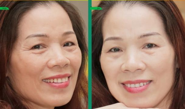 Công dụng của giải pháp nâng cơ xóa nhăn. Công nghệ Hifu tại Thu Cúc Clinics sẽ giúp Mẹ lấy lại tuổi xuân sau lần thực hiện (kết quả có thể khác nhau tùy cơ địa từng người)