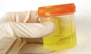 Xem nước tiểu đoán tuổi thọ con người