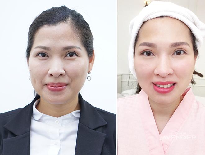 Chị Thu Hiền (40 tuổi, Hà Nội) là trường hợp nắm bắt được thị hiểu làm đẹp và tìm hiểu công thức trẻ hóa da này từ lâu. Chị cho biết mỗi năm đều làm Thermage hai lần để trẻ đến khi nào không trẻ được nữa mới thôi.