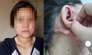Cô gái mang vết sẹo khổng lồ trên mặt sau phẫu thuật căng da